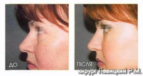 Омолаживающая хирургия лица - до и после операции