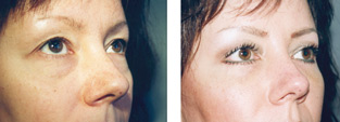 Eyelid Surgery - Belpharoplasty Before and after operation