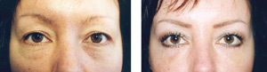 Belpharoplasty Before and after operation