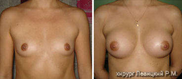 Mammary Surgery- before and after operation