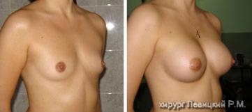 Увеличение груди имплантами - до и после операции