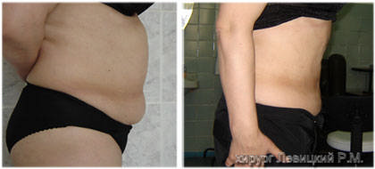 Liposuction and liposculpture. Before and after operation
