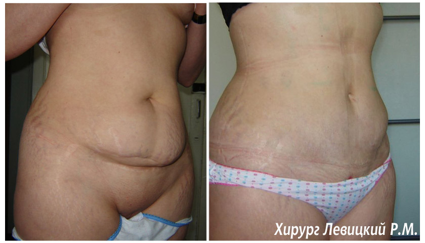 операция по уменьшению груди фото