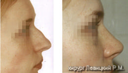 Nasal Surgery - before and after operation