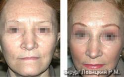 Rejuvenation Surgery Before and after operation