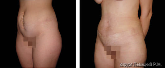 Abdominoplasty. Before and after operation