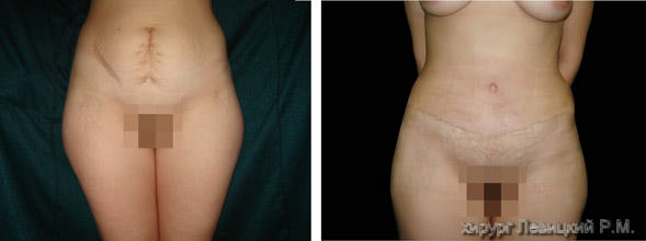 Abdominoplasty. Before and after operationи